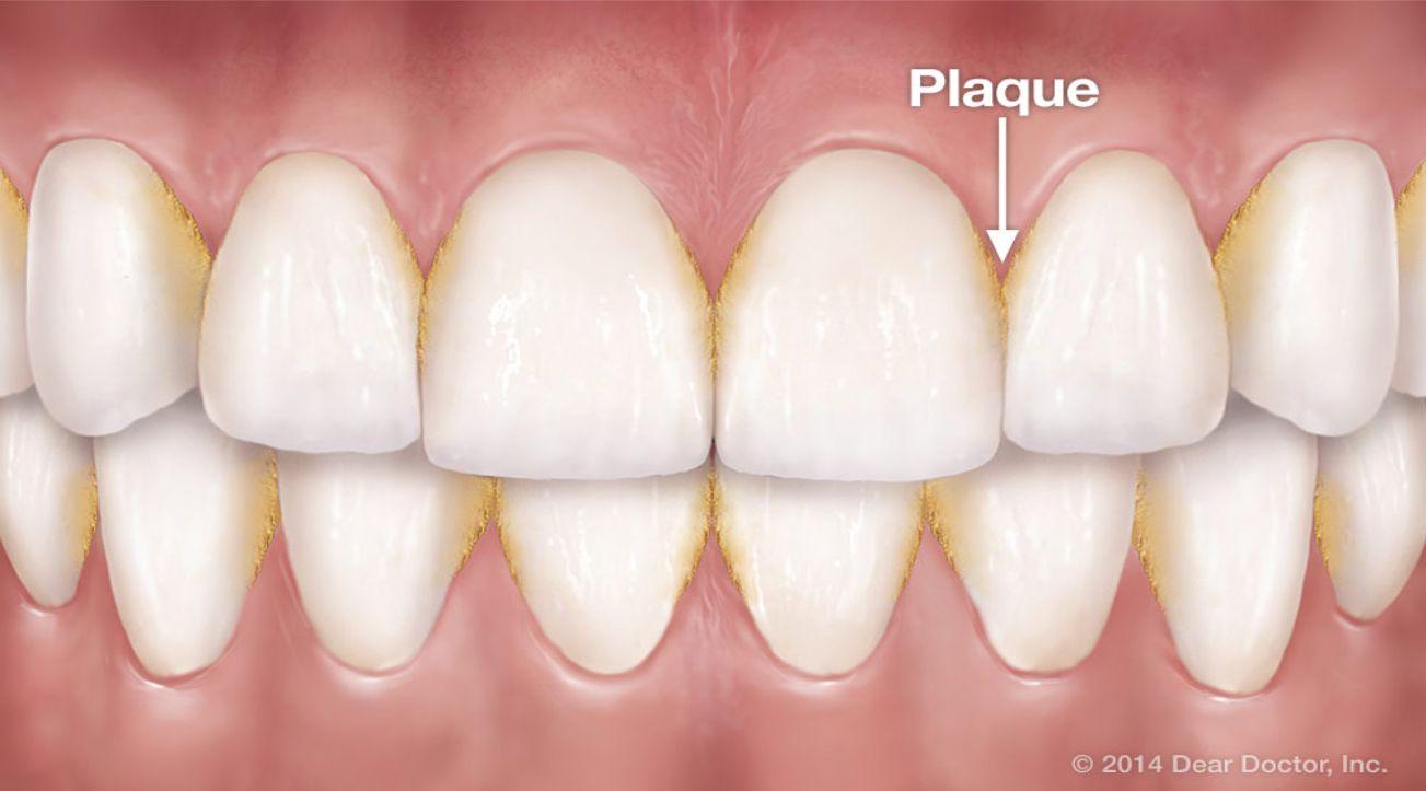 cara menghilangkan karang gigi, plak gigi secara alami, dengan garam, backing soda dan bahan lain, tips herbal tazakka