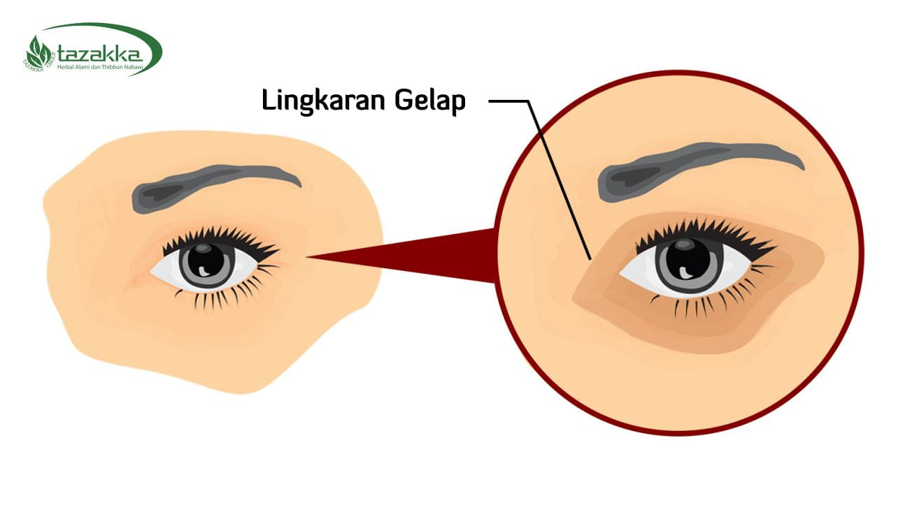 manfaat mentimun untuk wajah cara menghilangkan lingkaran gelap diwajah