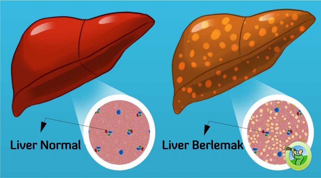 cara mengobati penyakit liver, tips herbal tazakka
